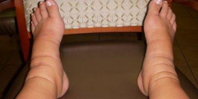 Legs Swelling