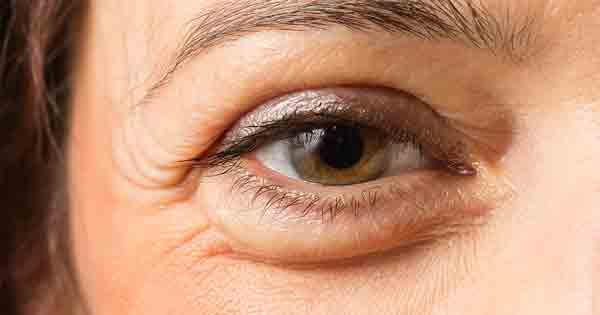 swelling in eyes